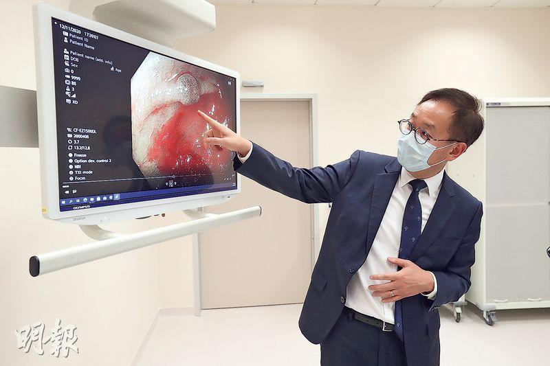 中大醫院設有最新的內視鏡系統,可呈現1920×1080P畫質,並以4K電視顯示。中大醫院營運總監胡志遠表示,儀器準確靈敏,醫生可看到早期病變,如腸道的3毫米良性瘜肉(圖)。(李紹昌攝)